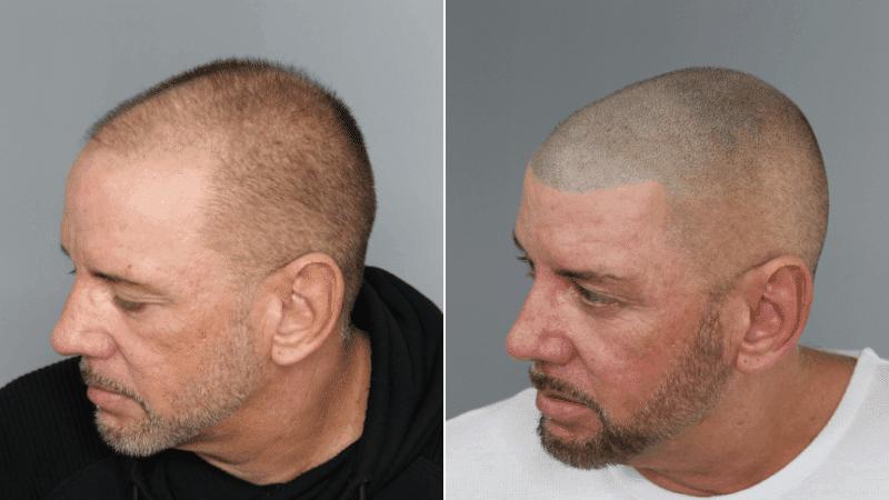 vor und nach Ihrer ersten Kopfhaut-Mikropigmentierungsbehandlung