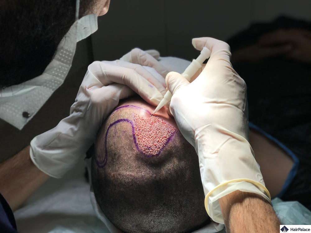 Haarimplantationsverfahren